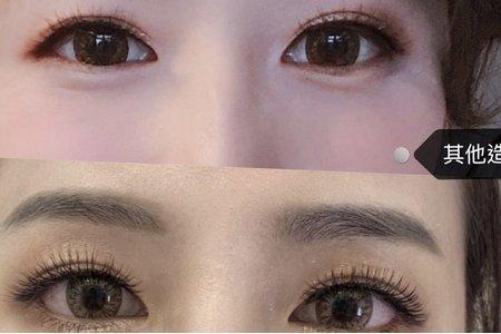 眼型調整/其他對比照