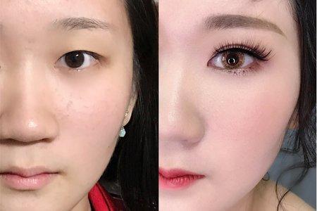 單眼皮調整 素人改造