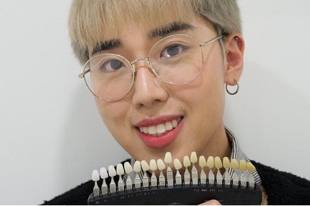 牙齒美白前後對比